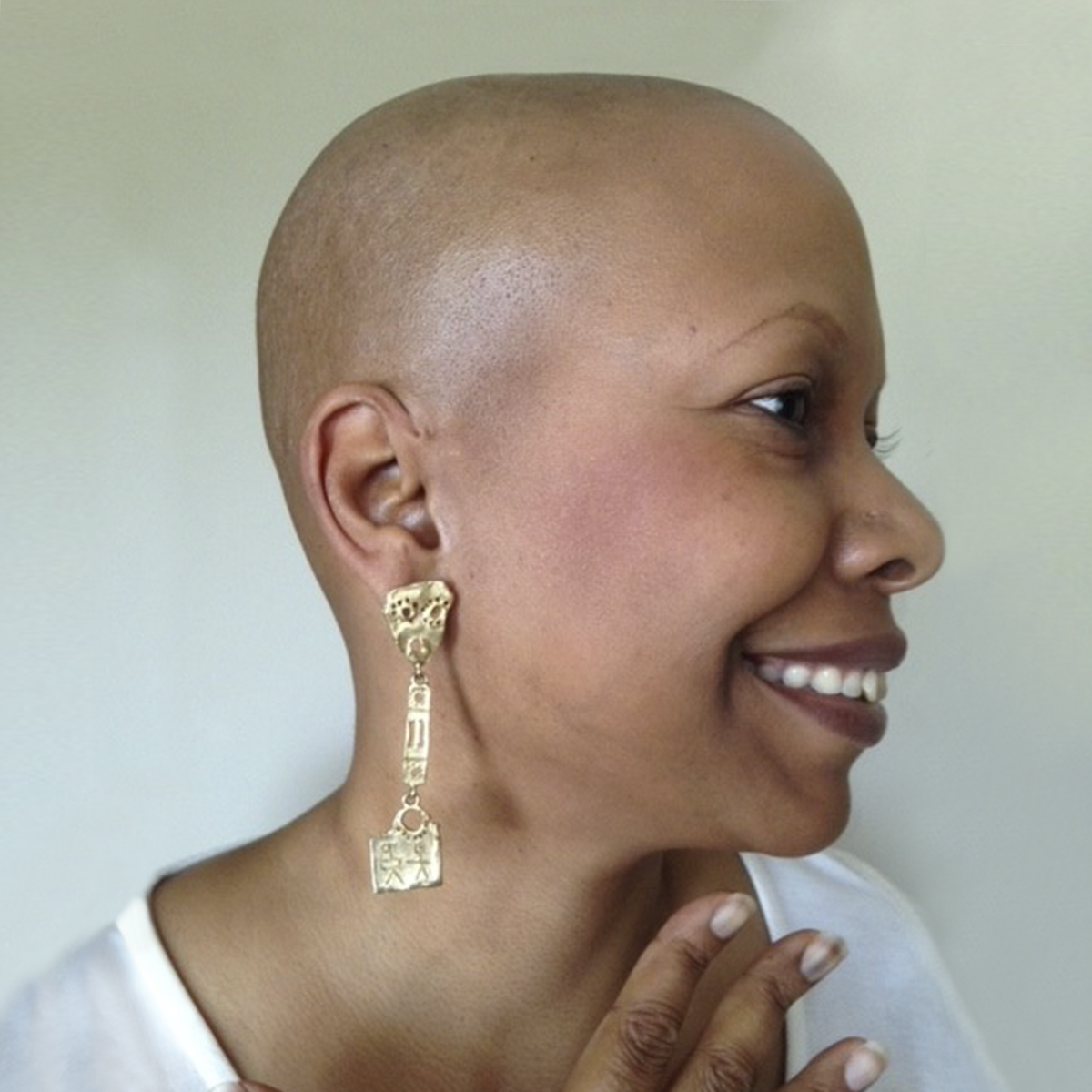 Dianna Newton, grateful patient, in 2015 following treatment for cancer