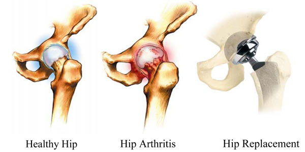 Orthopaedics - Knee, Hip, and Joint Surgery in Baltimore, MD