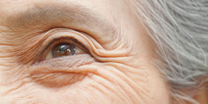5 Age-Related Eye Problems In Your 50s and Beyond
