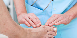 Got a case of the bunions? Here's what you need to know