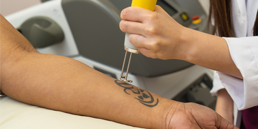 Tattoo remorse? Here's how to erase the ink