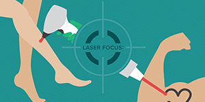 Infographic: 8 Things to Know About Laser Hair and Tattoo Removal