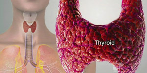 Dr. Ryan Sobel Discusses Thyroid Problems